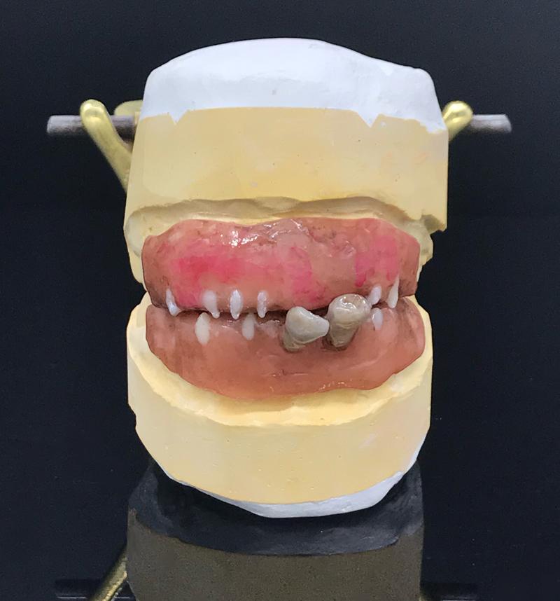 Sickening Zähne 2b